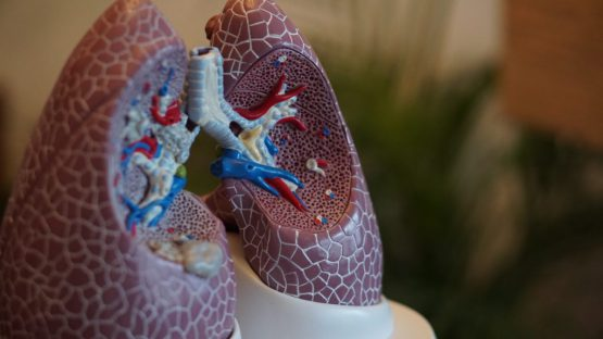 Radiation Doses for Lung Cancer Screenings Vary