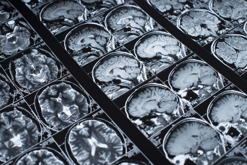 PET Scans and Alzheimers