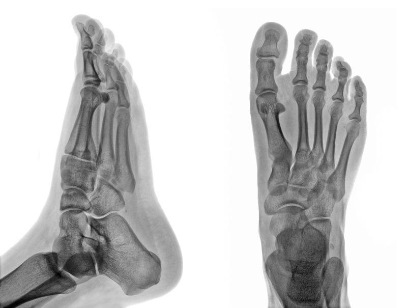 Foot CT PET scan